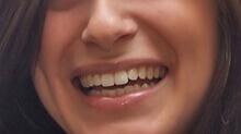 Szabályos mosoly fogszabályozással felnőtt korban is