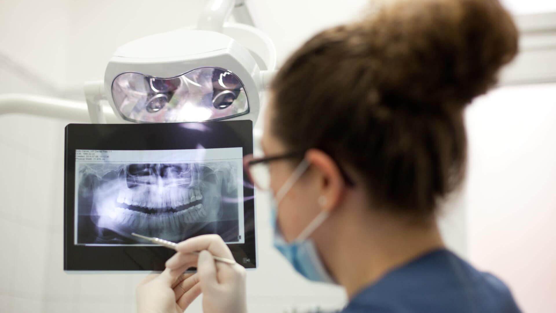 Gyökérkezelés modern fogászati technológiával
